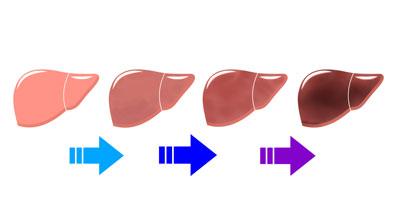肝臓の機能低下